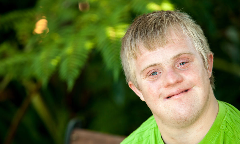 an overview of the down syndrome in children and general medical research You have probably seen people who have down syndrome they have certain physical features, such as a flatter face and upward slanting eyes they may have medical problems, too, such as heart defects kids with down syndrome usually have trouble learning and are slower to learn how to talk and take.