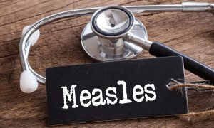 measles stock image